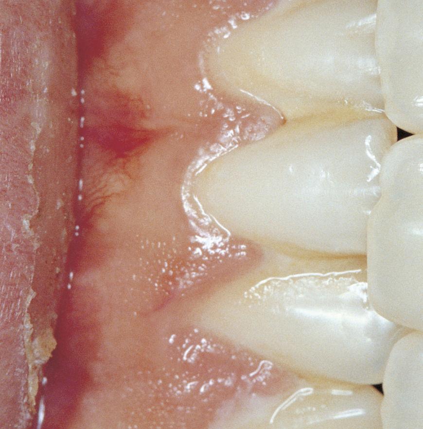 IMAGE: Photography –teeth